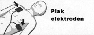 Elektroden plakken op volwassene